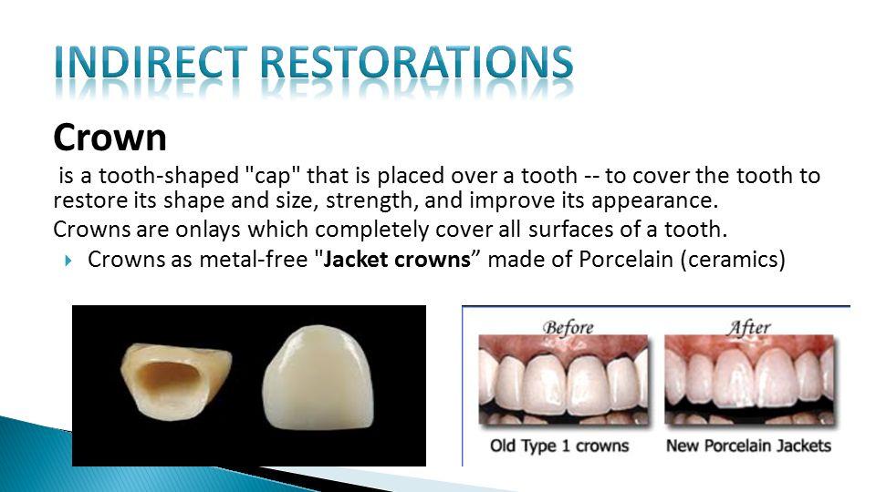 Indirect Restorative Materials of Dental Consumables