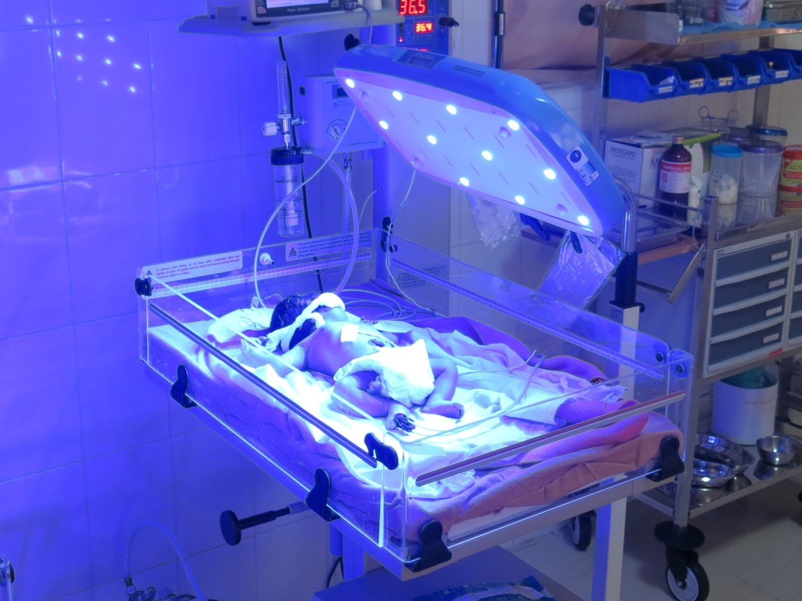 Neonatal Light Therapy Device