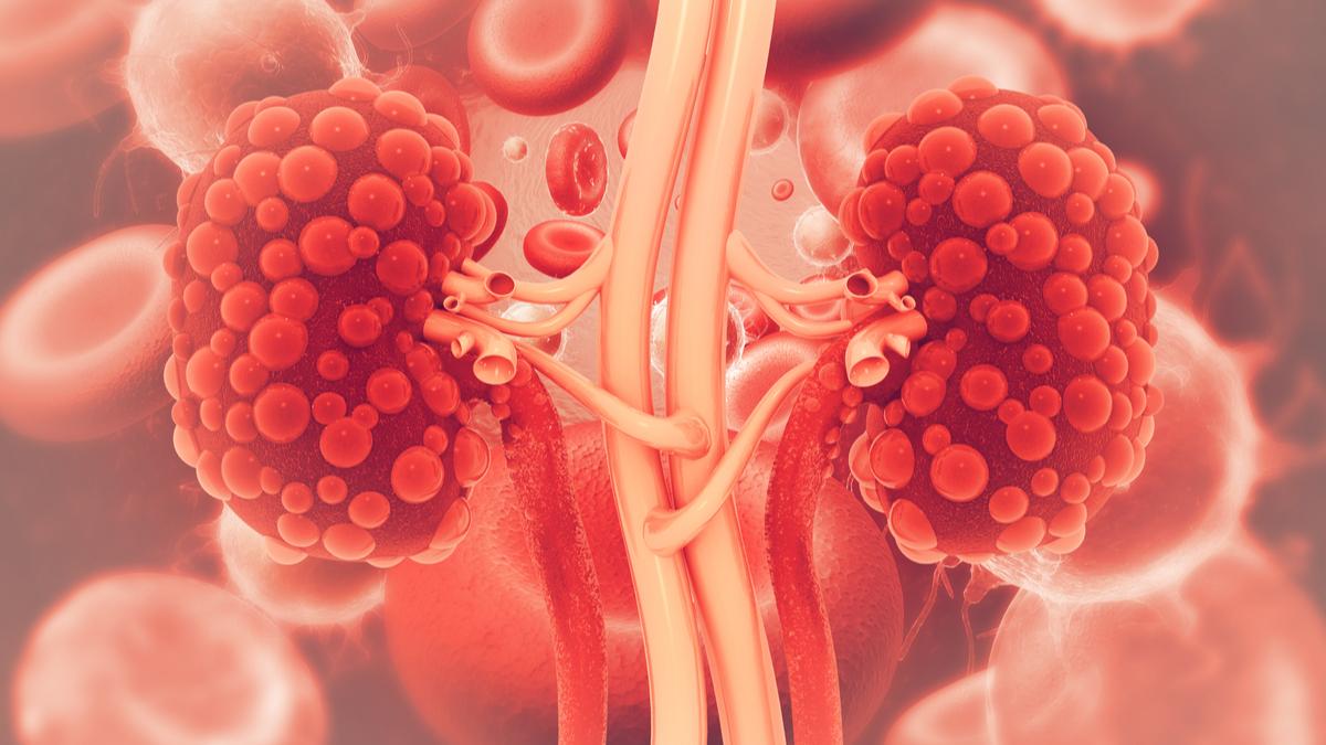 Renal Diseases Drug